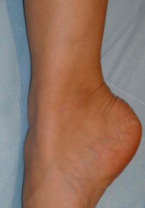cicatrice malléole éveinage