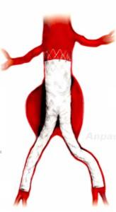 schéma endoprothèse aortique