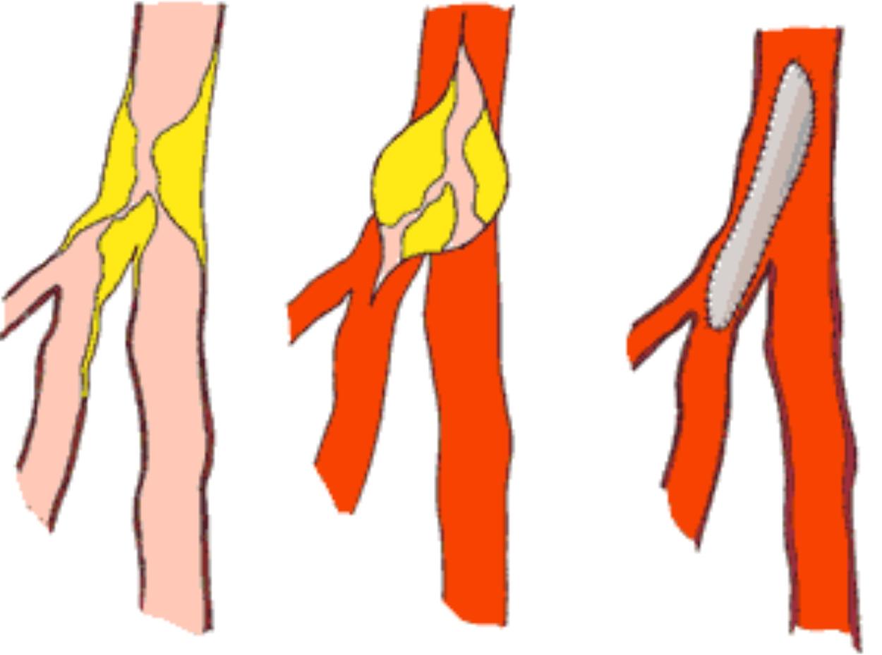 endartériectomie