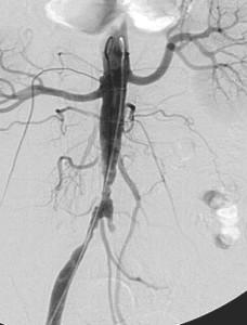 angioplastie kingking IPB 1
