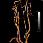 sténose carotide angioscanenr